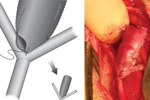 Media Solutions; Illustration; University of Wisconsin; School of Medicine and Public Health; UW-Madison; Medical Illustration, Aneurysm, suture