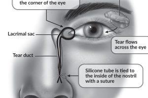 Media Solutions; Illustration; University of Wisconsin; School of Medicine and Public Health; UW-Madison; Medical Illustration, HFFY, UW-Health, Patient education, lacrimal gland, eye, tear duct
